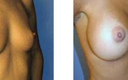 bryst-forstoerring13