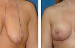 bryst-loeft-7