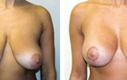 bryst-loefting-18
