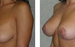 bryst-loefting-20