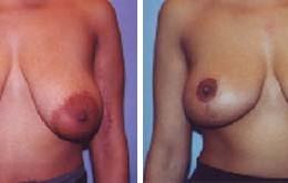bryst-loefting-22