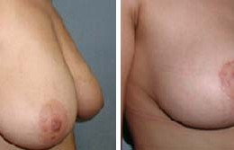 bryst-loefting-24