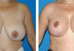 bryst-reduksjon-5