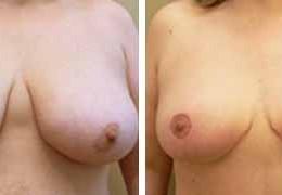 bryst-reduksjon-6