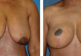 bryst-reduksjon-7