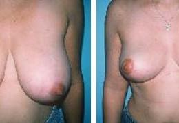 brystforminskelse-13