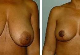 brystforminskelse-14