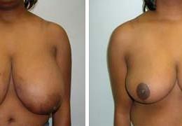 brystforminskelse-15
