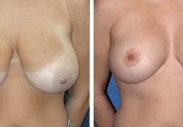brystforminskning-10