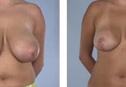 brystforminskning-12