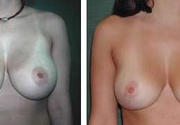 brystforminskning-8