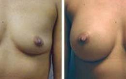 brystforstoerrelse1