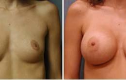 brystforstoerrelse2
