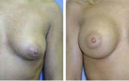brystforstoerrelse3