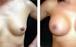 brystforstoerrelse31