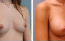 brystforstoerrelse4
