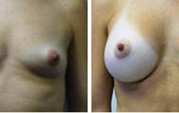 brystforstoerrelse5