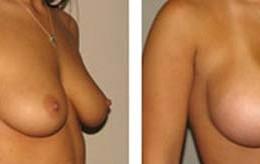 brystforstoerring10