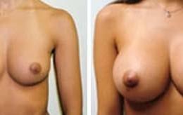 brystforstoerring11