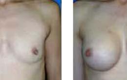 brystforstoerring28