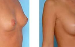 brystforstoerring30