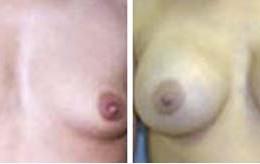 brystforstoerring9