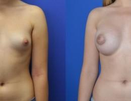 brystforstorrelse-runde-silikon