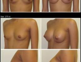brystforstorrelse-silicone-275cc