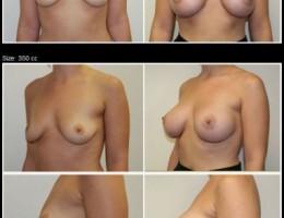 brystimplantat-350cc-kohesivt