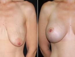 brystimplantat-brystloft