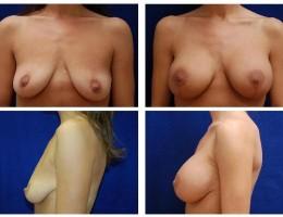 brystimplantat-brystloft-30