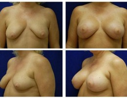 brystimplantat-brystloft-43
