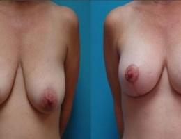 brystimplantat-brystloft-53