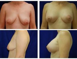 brystimplantat-brystloft5