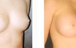 brystimplantat19