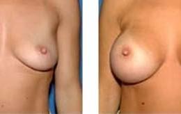brystimplantat20