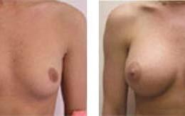 brystimplantat21