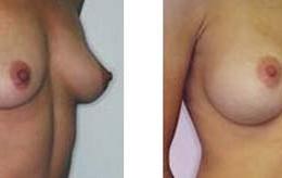 brystimplantat22