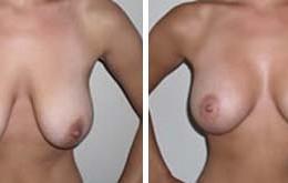 brystloefting-11