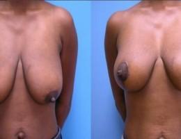 brystloft-ankerloft