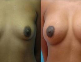 brystloft-brystforstorrelse2