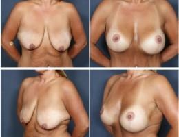 brystloft-brystimplantat