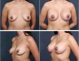 brystloft-brystimplantat2