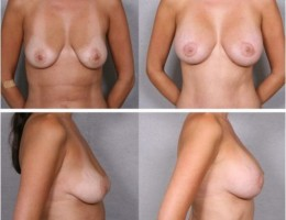 brystloft-brystimplantat4
