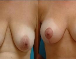 brystloft-brystimplantat5