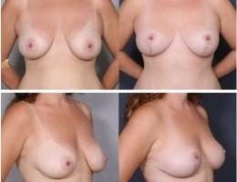 brystlofting10