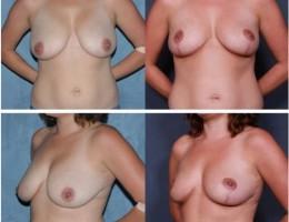 brystlofting12