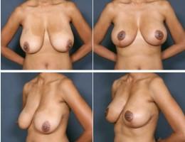 lofte-brystene7