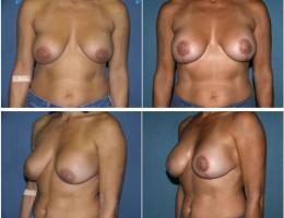 lofte-brystene8