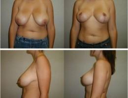 lofte-brystene9